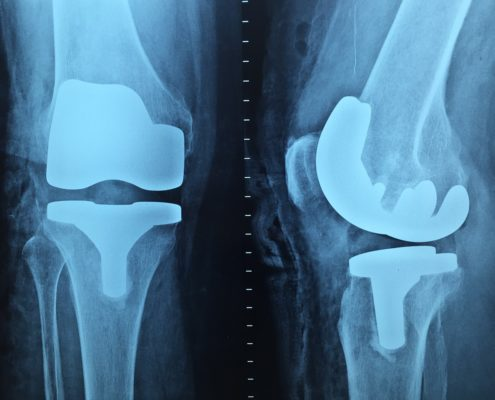 Artificial Knee