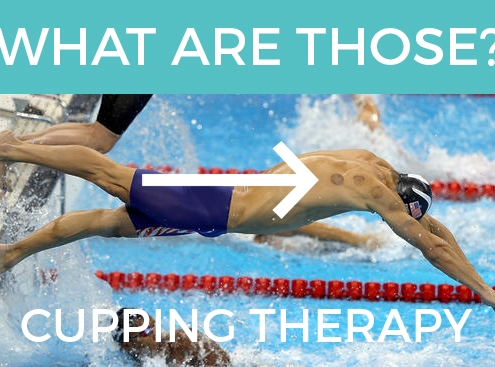 What is cupping therapy?